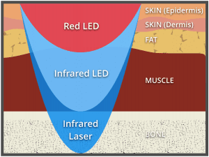 low level laser therapy cold laser therapy