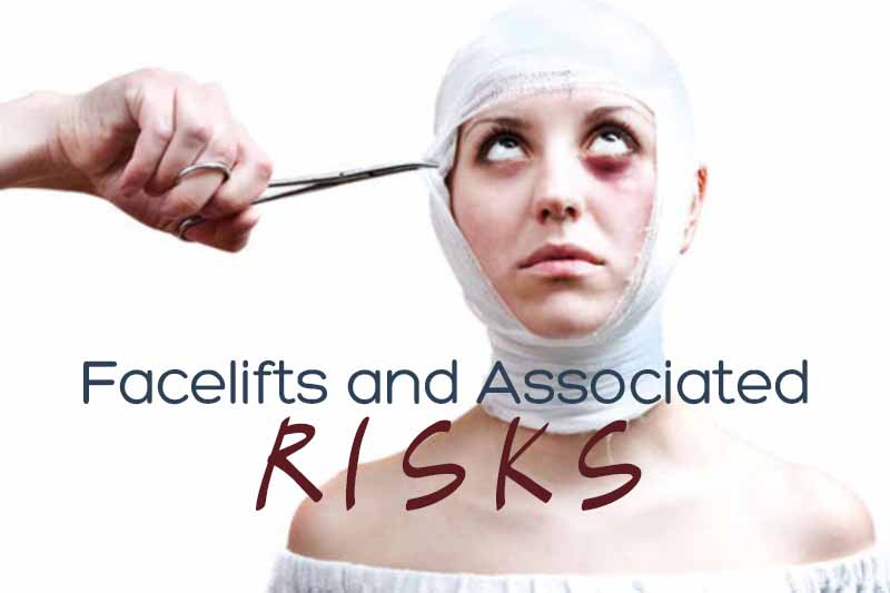 Understanding Facelifts and Associated Risks